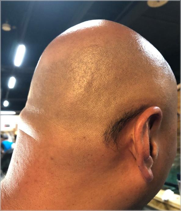 クロちゃん耳の後ろの毛