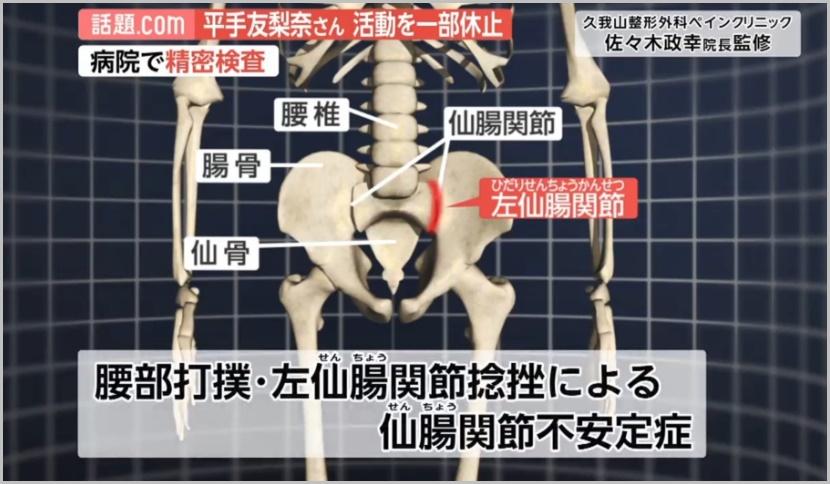 平手友梨奈(仙腸関節不安定症)