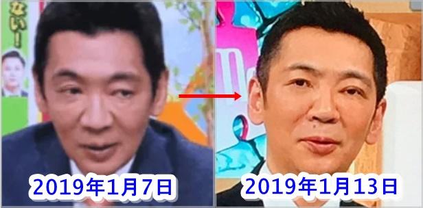 宮根誠司の顔の変化
