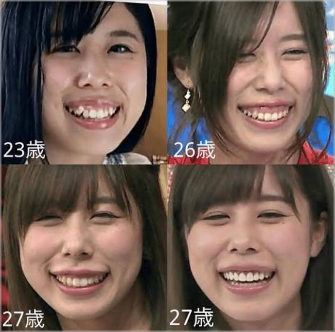 有村藍里(有村架純の姉)の歯の矯正